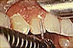 Replacement Of Discolored Veneers